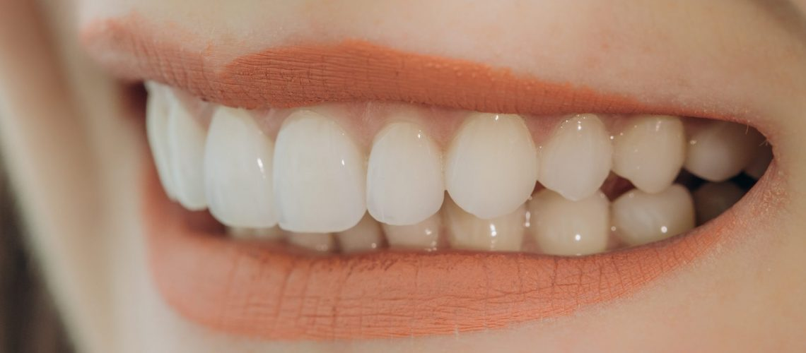 Finished ceramic front crowns. 8 units dental veneers.