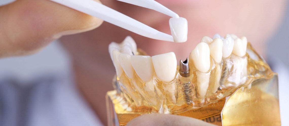 Graceful Smiles - Dental Implants Example